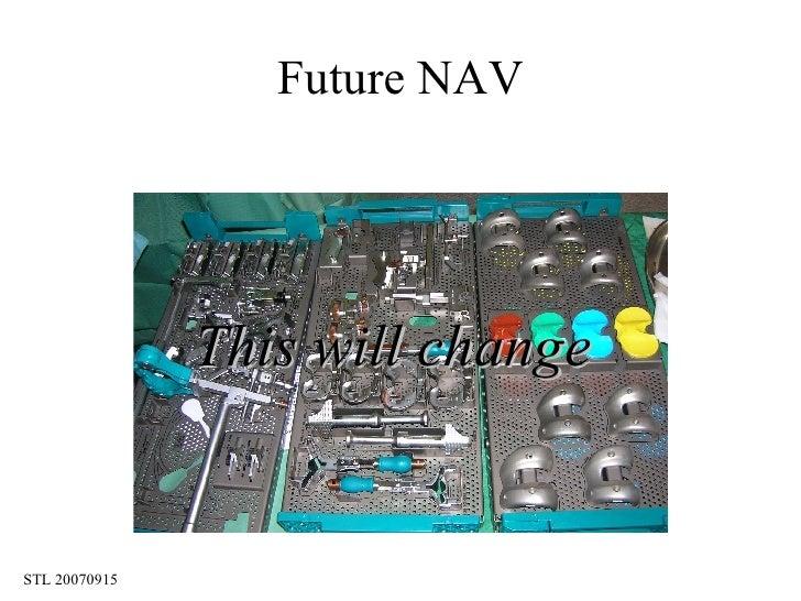 Future NAV This will change