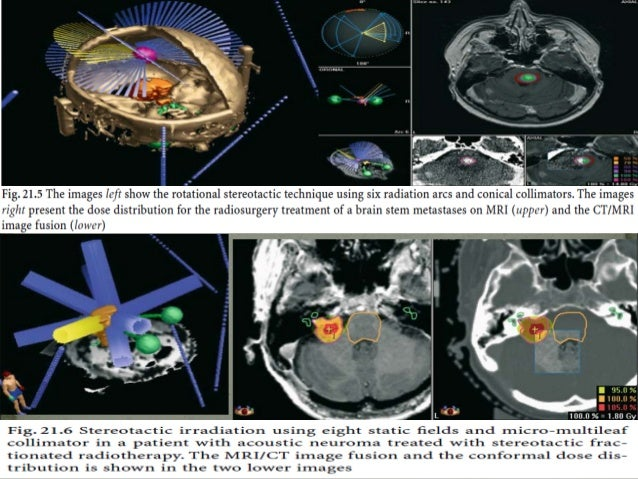 The tumor-specific morphology, the growth pattern of the tumor, and the anatomical relationship to the normal tissue are ...