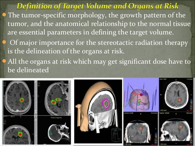 The stereotactic radiation is characterized by a very steep dose fall-off on the margin of the target volume.  The steep...