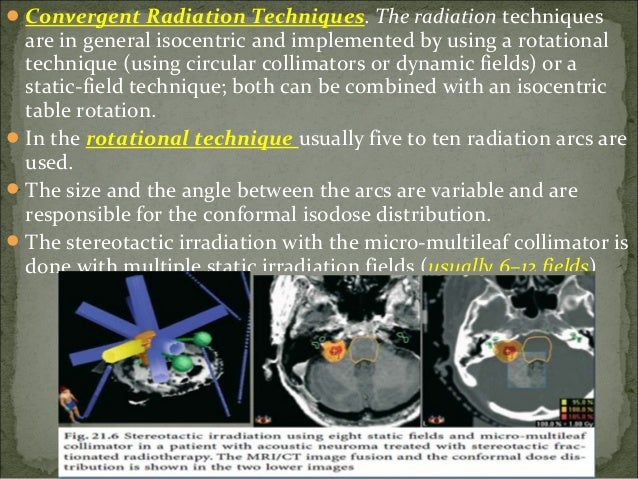 The positioning of the patient on the LINAC is done by using a stereotactic positioner .  This instrument allows to proj...
