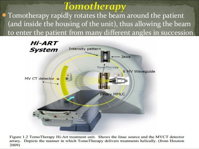 Stereotactic Radio-Surgery/Therapy (SRS/SRT)