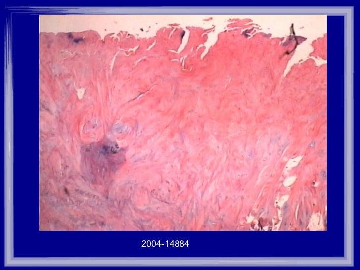 2004-14884