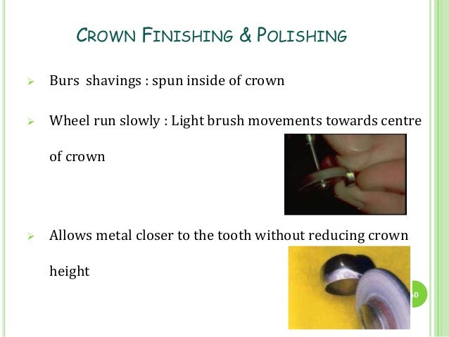 Stainless Steel Crowns In Pediatric Dentistry