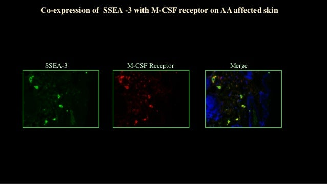 Normal skin AA–affected skin C3H/HeJ Normal AA Normal skin AA-affected skin CD3 (red) Ki67 (red) High Level of Ki67 Expres...