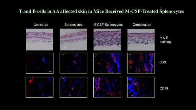 Weeks NumberofAA 0 1 2 3 4 5 0 2 4 6 8 10 Untreated Myeloid cells Myeloid cells +Splenocytes Untreated M-CSF cells + splen...