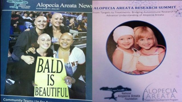 Patchy Alopecia Areata Alopecia Universalis Amos Gilhar, Ralf Paus, Richard S. Kalish , JCI, 2007Immuno privilege of hair ...