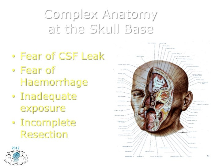 Funky Skull Base Surgery Anatomy Illustration Anatomy And