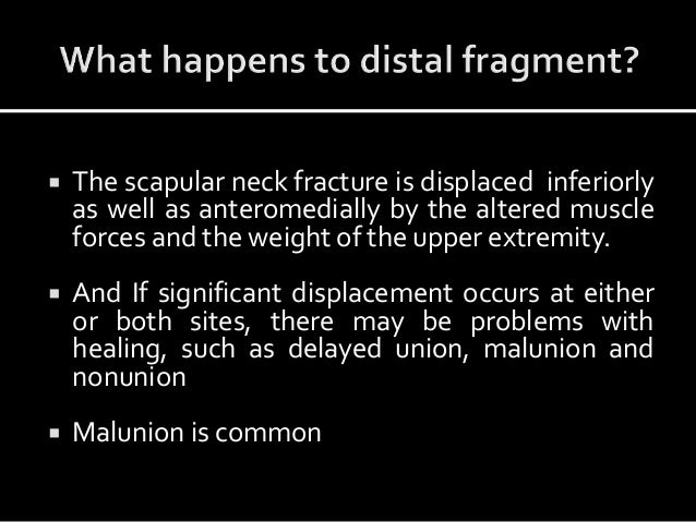 The scapular neck fracture is displaced inferiorly as well as anteromedially by the altered muscle forces and the weight...