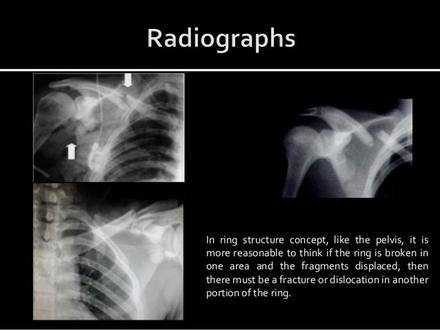 Case example quoted in wheeles textbook for conservative management With glenoid not much displaced