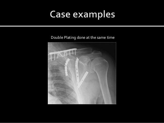 Superior Shoulder Suspensory Complex injuries (SSSC)