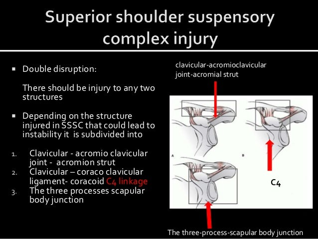  Double disruption: There should be injury to any two structures  Depending on the structure injured in SSSC that could ...