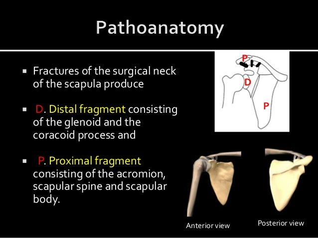  Fractures of the surgical neck of the scapula produce  D. Distal fragment consisting of the glenoid and the coracoid pr...