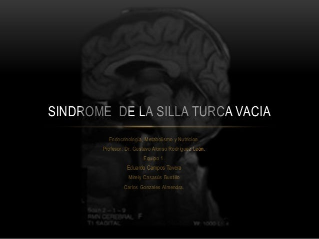 Sindrome De La Silla Turca Vacia Empty Sella Syndrome