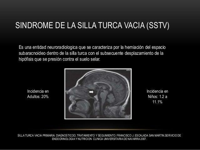 Sindrome de La Silla Turca Vacia. (EMPTY SELLA SYNDROME)