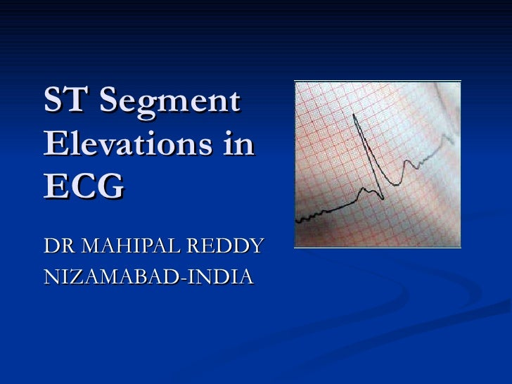 ST Segment Elevations in ECG DR MAHIPAL REDDY NIZAMABAD-INDIA