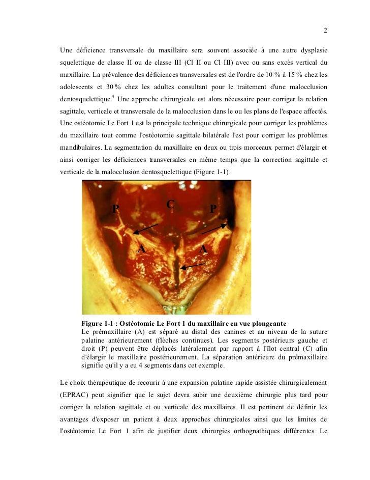 2Une déficience transversale du maxillaire sera souvent associée à une autre dysplasiesquelettique de classe II ou de clas...