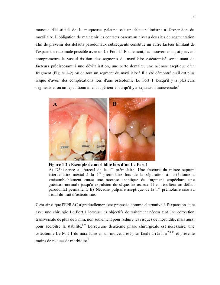 3manque délasticité de la muqueuse palatine est un facteur limitant à lexpansion dumaxillaire. Lobligation de maintenir le...