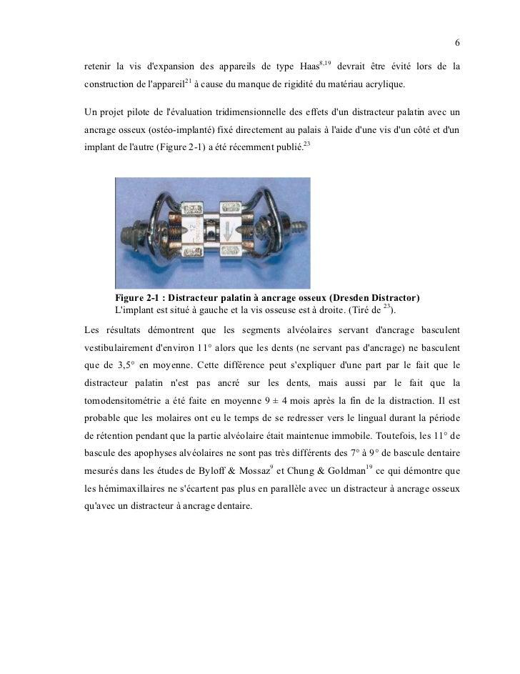 6retenir la vis dexpansion des appareils de type Haas8,19 devrait être évité lors de laconstruction de lappareil21 à cause...