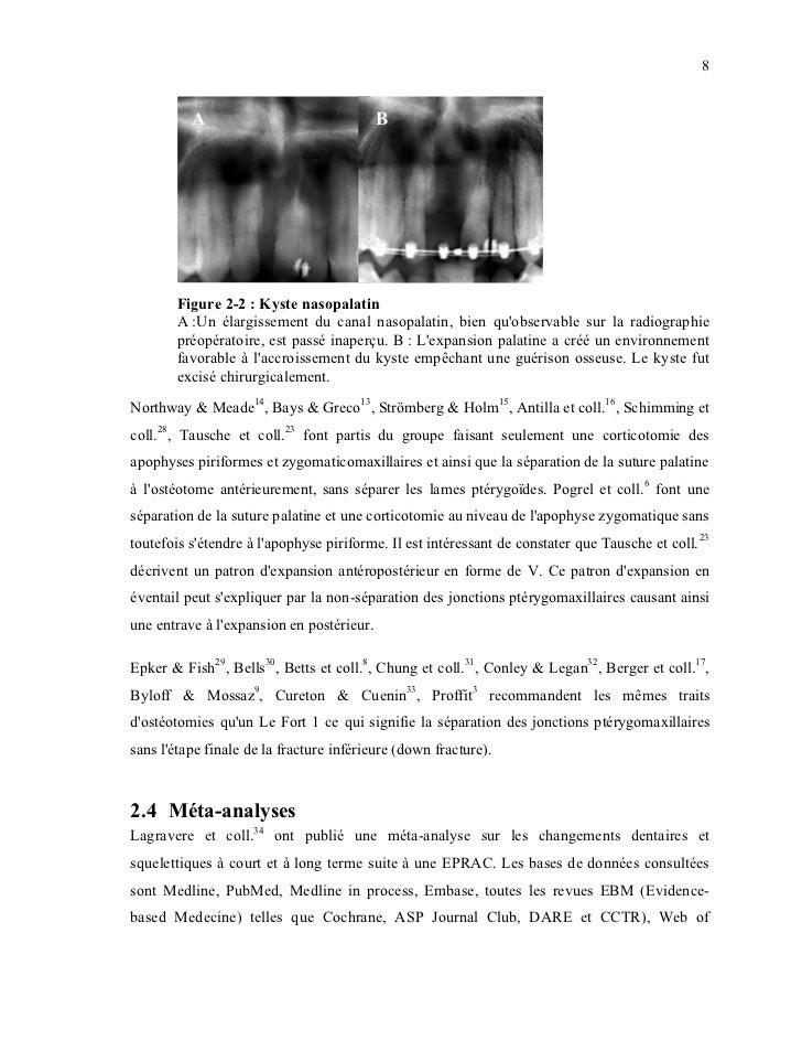 8          A                                B       Figure 2-2 : Kyste nasopalatin       A :Un élargissement du canal naso...