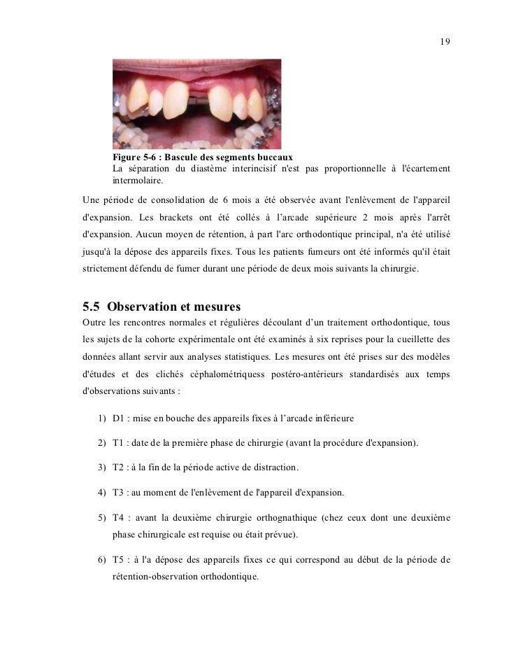19       Figure 5-6 : Bascule des segments buccaux       La séparation du diastème interincisif nest pas proportionnelle à...