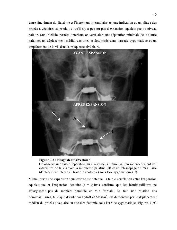 40entre lincrément du diastème et lincrément intermolaire est une indication quun pliage desprocès alvéolaires se produit ...