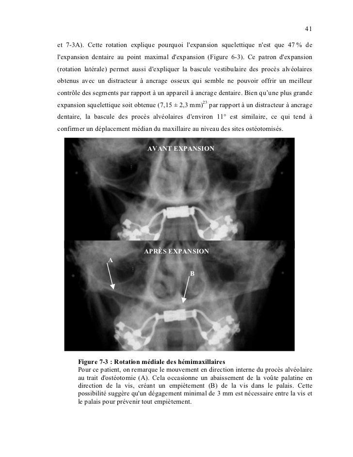 41et 7-3A). Cette rotation explique pourquoi lexpansion squelettique nest que 47 % delexpansion dentaire au point maximal ...