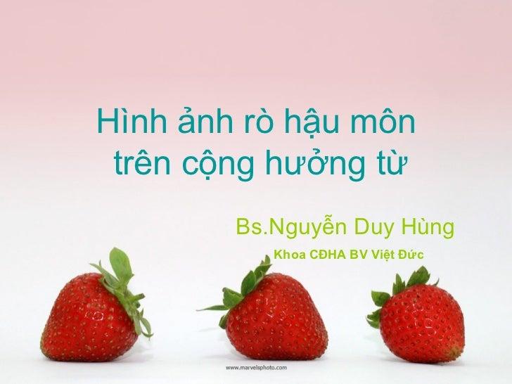 Hình ảnh rò hậu môn trên cộng hưởng từ        Bs.Nguyễn Duy Hùng           Khoa CĐHA BV Việt Đức