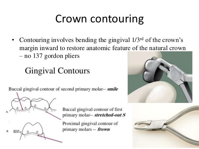 Stainless Steel Crowns In Pediatric Dentistry Ppt