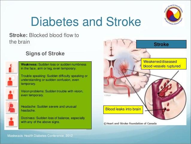 Diabetes und schlaganfall