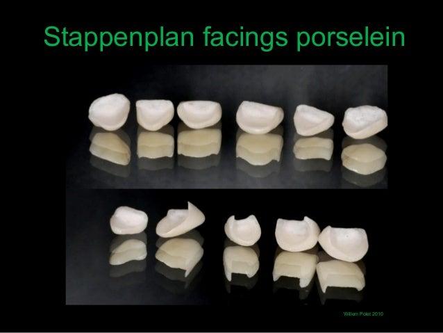 Stappenplan facings porselein                        Willem Polet 2010