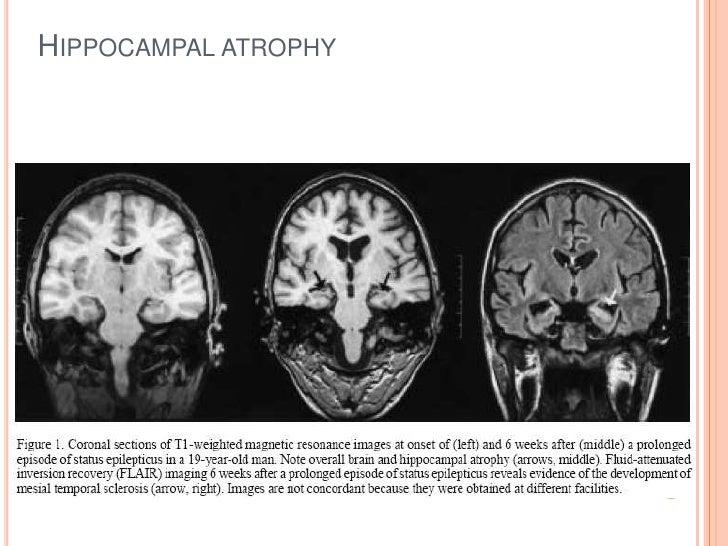 Hippocampal atrophy<br />