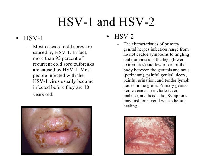Sexually transmitted infection caused by the herpes simplex virus