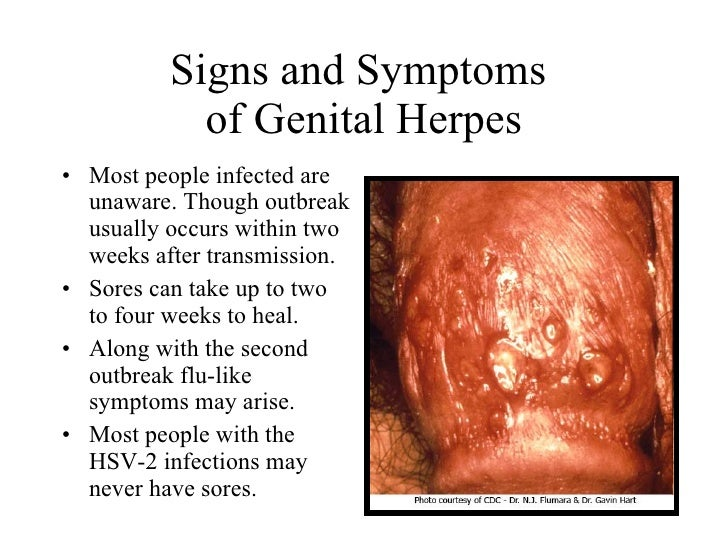 Dating a guy with genital herpes