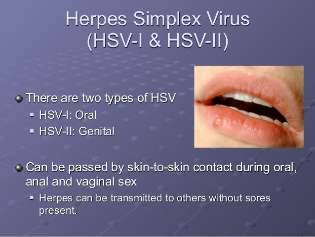 oral Hsv sex and