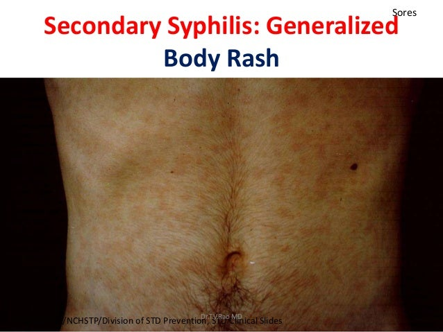 Sexually transmitted diseases pictures syphilis genital sores