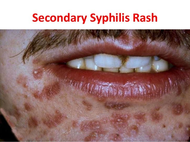 Sexually transmitted diseases in the mouth