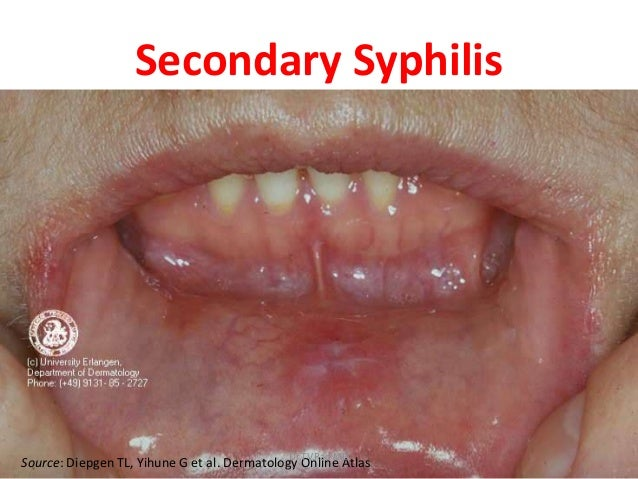Sexually transmitted disease mouth