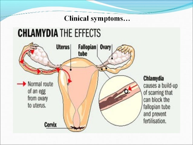 chlamydia the silent sexually transmitted disease Chlamydia is a common form of sexually transmitted disease (std) it is caused by a bacterium known as chlamydia trachomatis, wherein.