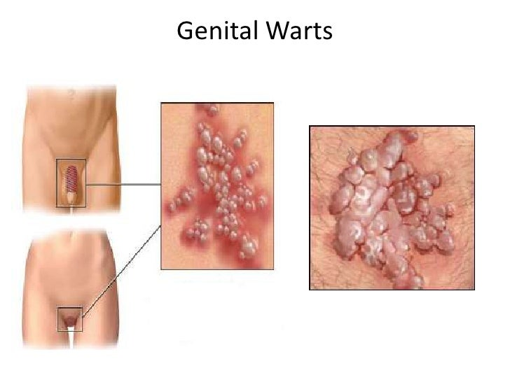Genital warts without sex