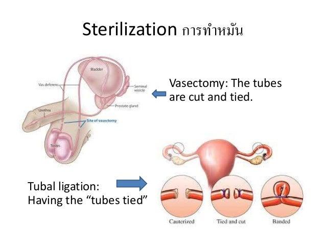 Std S And Birth Control