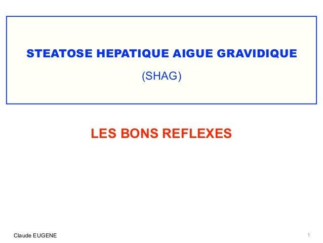 STEATOSE HEPATIQUE AIGUE GRAVIDIQUE (SHAG) 1Claude EUGENE LES BONS REFLEXES