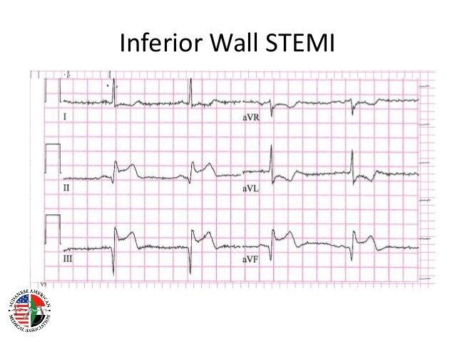 Ont Elevation Images : St elevation myocardial infarction