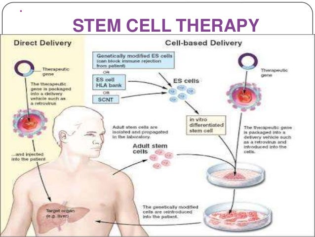 Stem cell therapy for cerebral palsy in bangalore dating 5