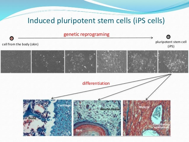 stem cell reprograming Goal of this project to develop an autologous stem cell gene therapy for  metastatic melanoma paients own blood forming stem cells will be gene  modified using.