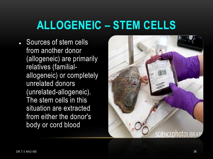 ALLOGENEIC – STEM CELLS     Sources of stem cells      from another donor      (allogeneic) are primarily      relatives ...