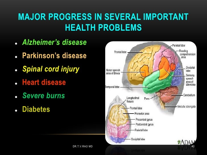 MAJOR PROGRESS IN SEVERAL IMPORTANT             HEALTH PROBLEMS   Alzheimer's disease   Parkinson's disease   Spinal co...