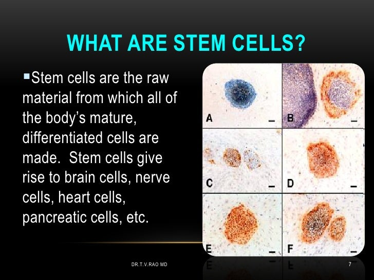 WHAT ARE STEM CELLS?Stem cells are the rawmaterial from which all ofthe body's mature,differentiated cells aremade. Stem ...