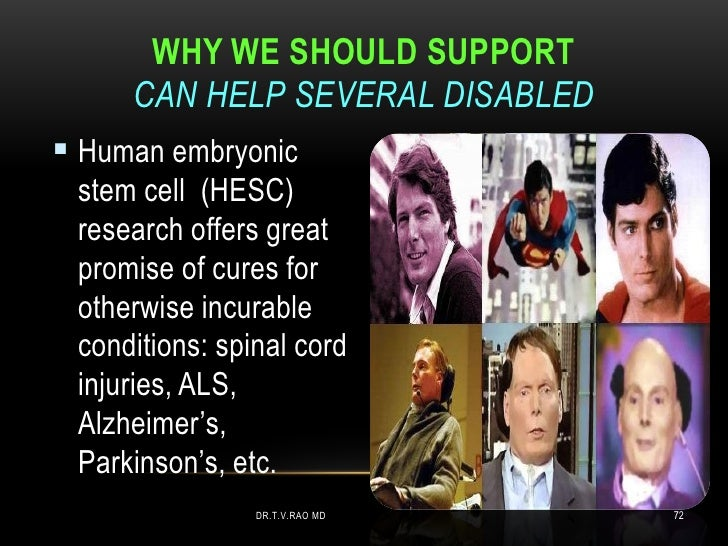WHY WE SHOULD SUPPORT     CAN HELP SEVERAL DISABLED Human embryonic stem cell (HESC) research offers great promise of cur...