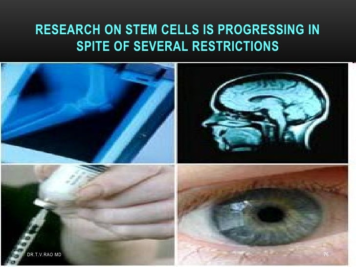 RESEARCH ON STEM CELLS IS PROGRESSING IN        SPITE OF SEVERAL RESTRICTIONSDR.T.V.RAO MD                                ...