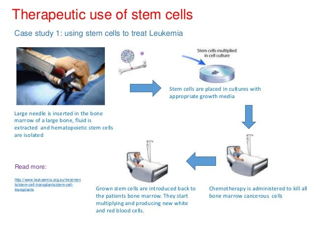 The Ethical Concerns of Stem Cell Research Essay